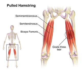 330px-pulled_hamstring